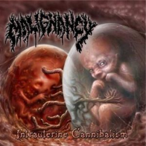 MALIGNANCY (USA) - Intrauterine Cannibalism 2-CD